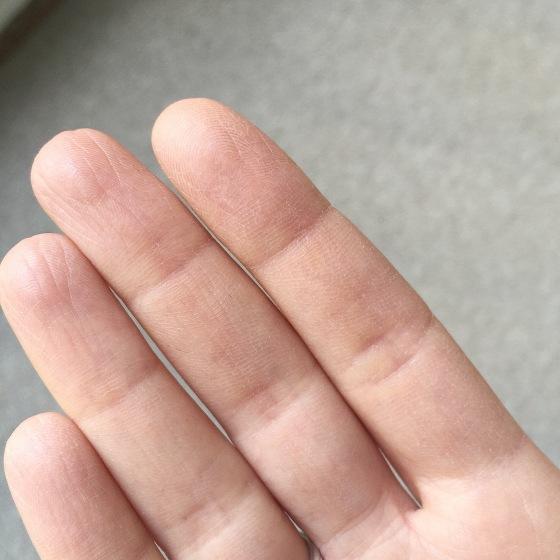 manos secas